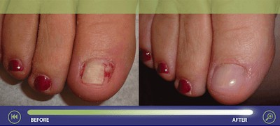 Keryflex Cosmetic Nail Restoration - Before And After Photos 1