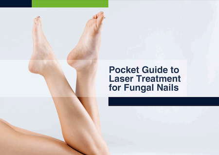 Pocket guide to laser treatment for fungal nail by Entire Podiatry in Brisbane or the Gold Coast